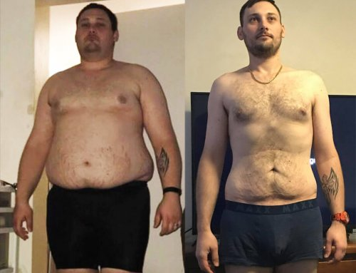 Brett lost 61kg for good!